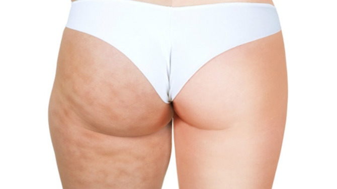 Mes 5 conseils anti-cellulite